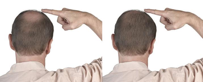 Le Minoxidil pour la repousse des cheveux