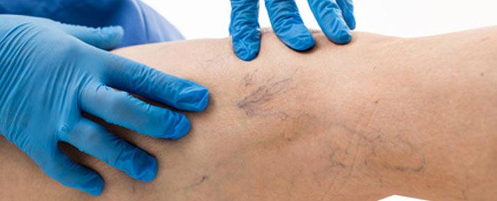 Le traitement naturel contre les varices Varesil